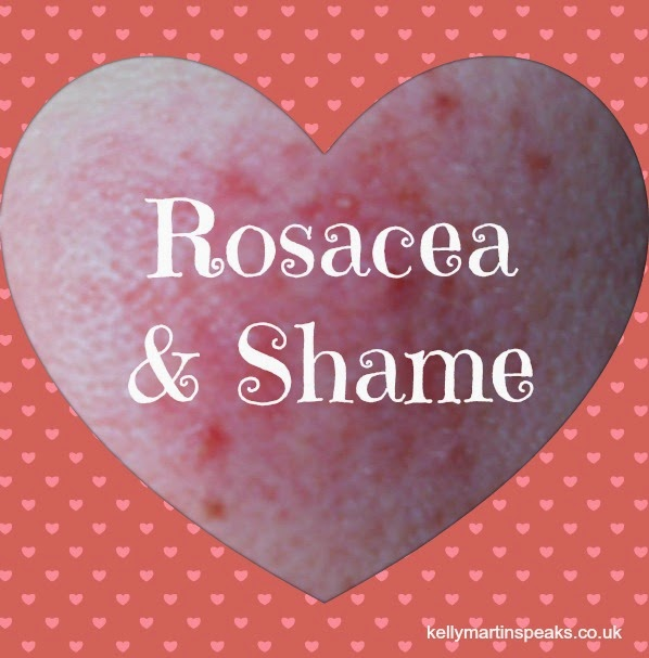 Rosacea Shame and Healing