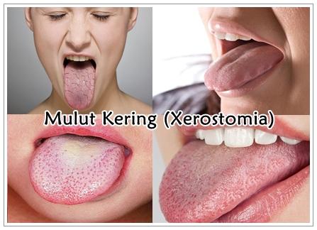 Cara Mengatasi Mulut Kering (Xerostomia) Paling Ampuh