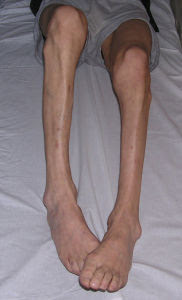 Muscle atrophy in legs exercises