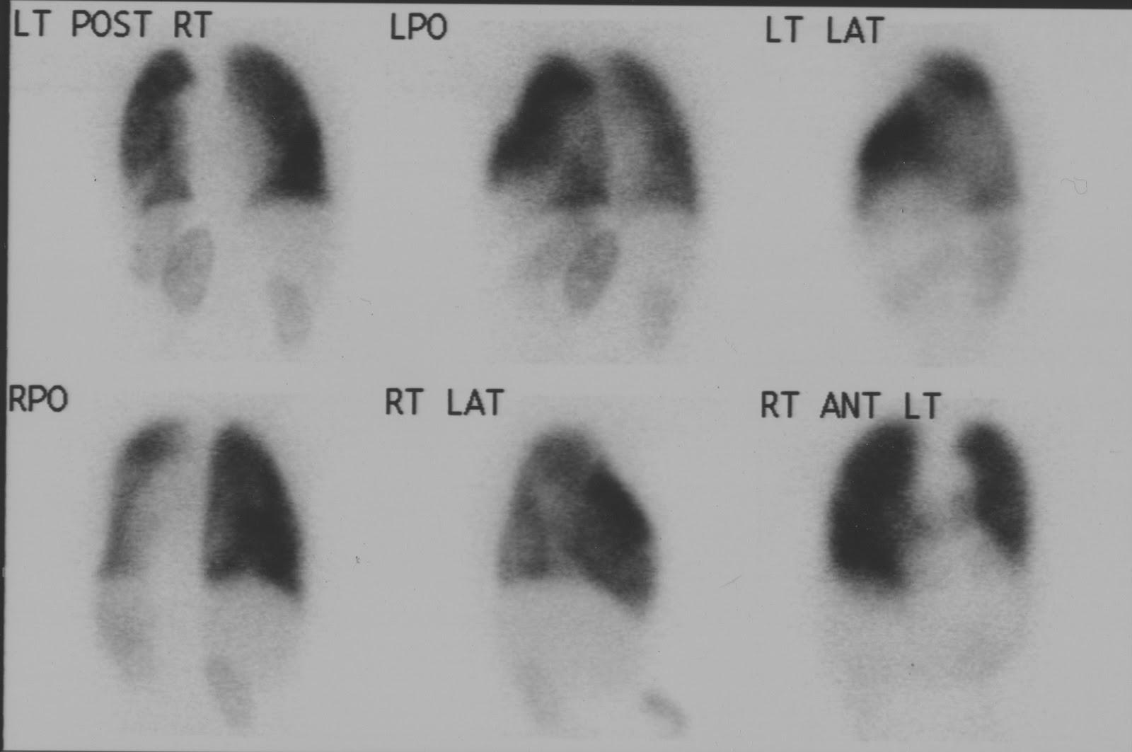 Nuclear Medicine Technology Program: Lung Scan - renal uptake