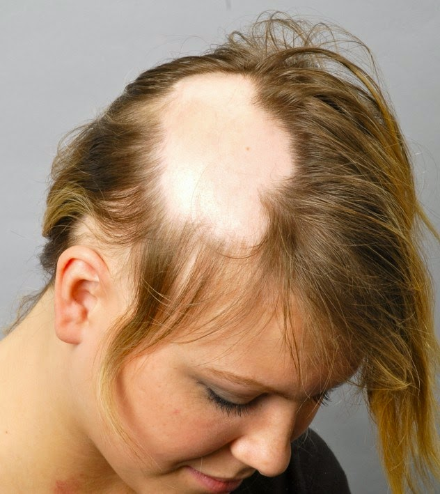 Reasons of Baldness in Men and Female