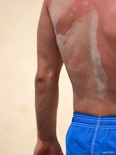 sandy skin