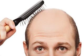 Cara Cepat Menumbuhkan Rambut Botak Secara Alami