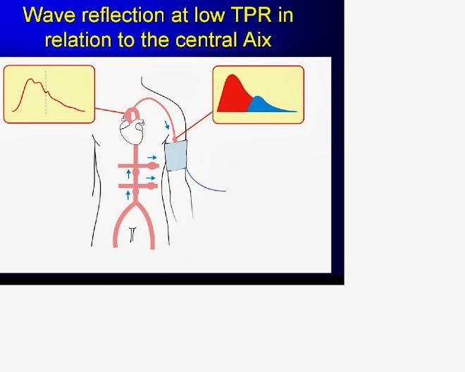 ワイヤレス動脈硬化測定