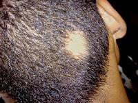 spot baldness