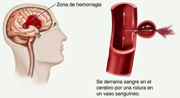 ACV_Hemorrágico
