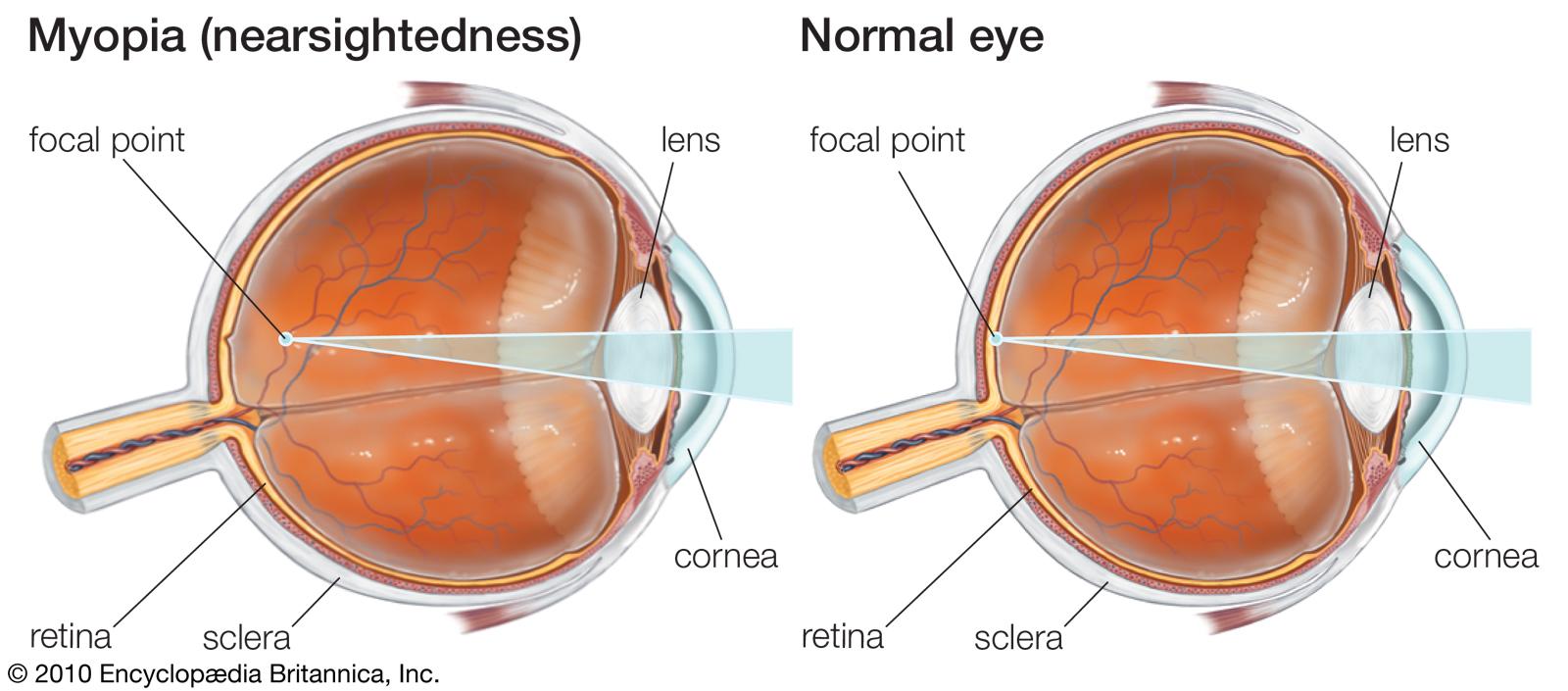 Presbyopia & Myopia