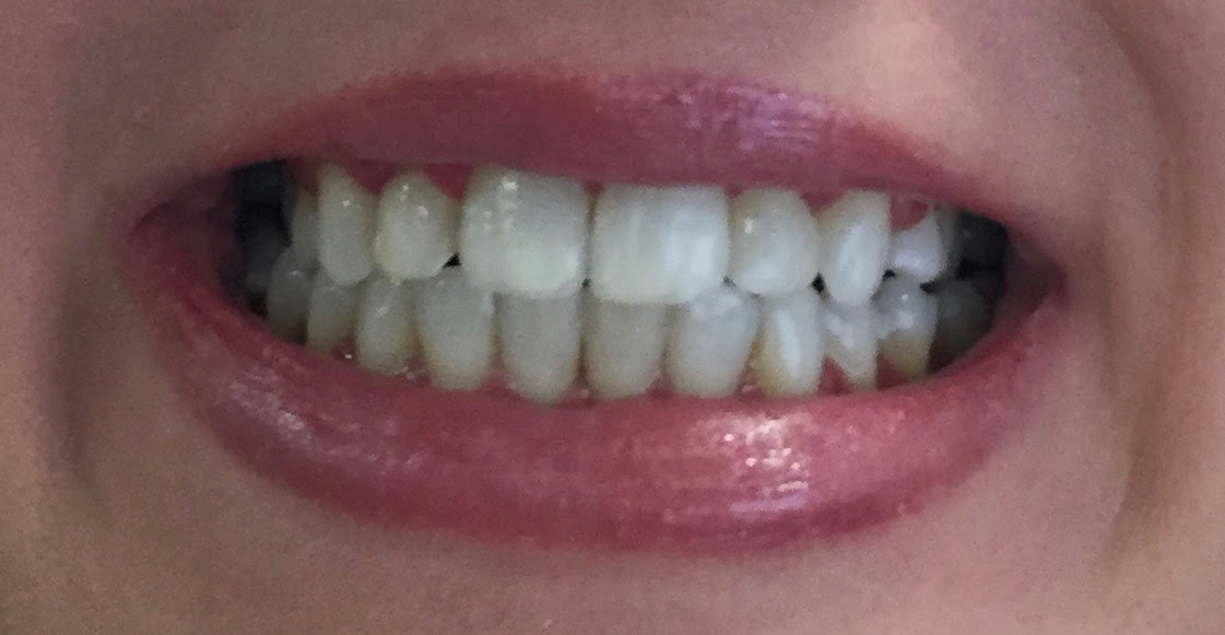 Acceledent Review Braces Off 5 Months Early