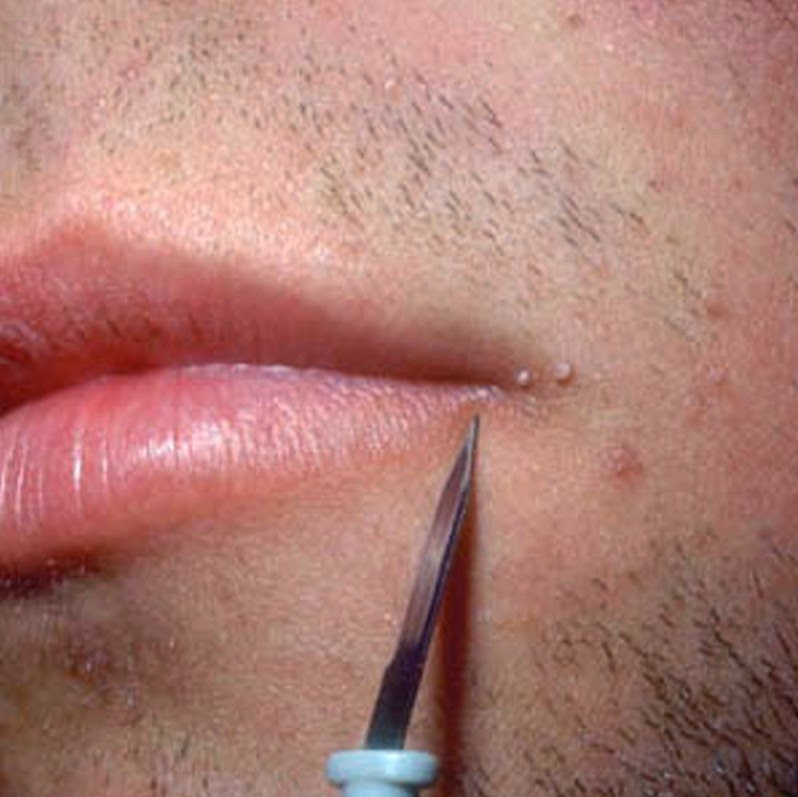 Photos Of Warts On Face