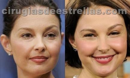 Ashley Judd y el Botox