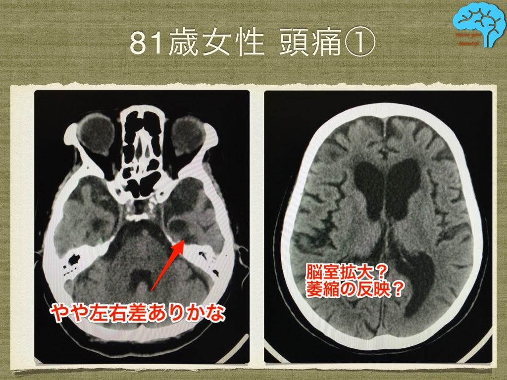 慢性頭痛の頭部CT。萎縮の左右差と脳室拡大あり。