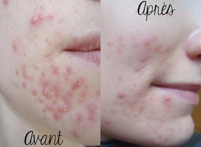My beauty moment: UPDATE - mon traitement contre l'acné II