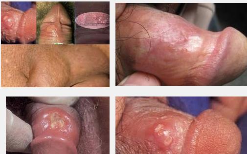 Hasil gambar untuk obat luka sipilis