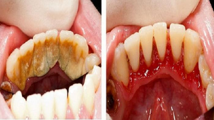Membersihkan Karang Gigi enggak perlu ke dokter, Atasi saja dgn cara alami