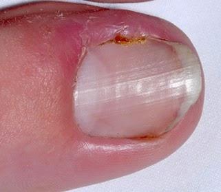 Las uñas amarillas el tratamiento en las manos