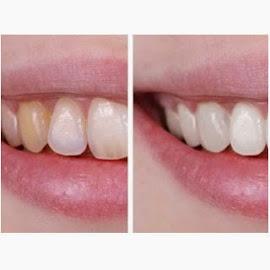 diş beyazlatma diş hastanesi beyaz dişler için