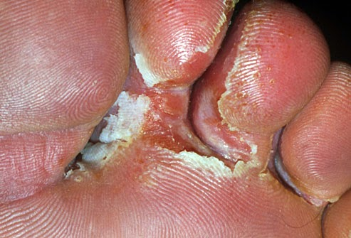 white skin between toes
