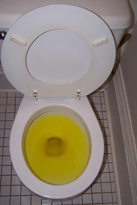 ANCIENT ROMANS USED URINE AS TOOTHPASTE, MOUTHWASH, AND LAUNDRY DETERGENT.