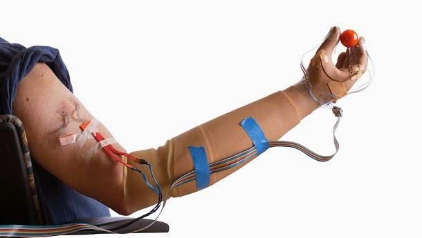 Mão protética restaura toque e cura dor fantasma (com video)