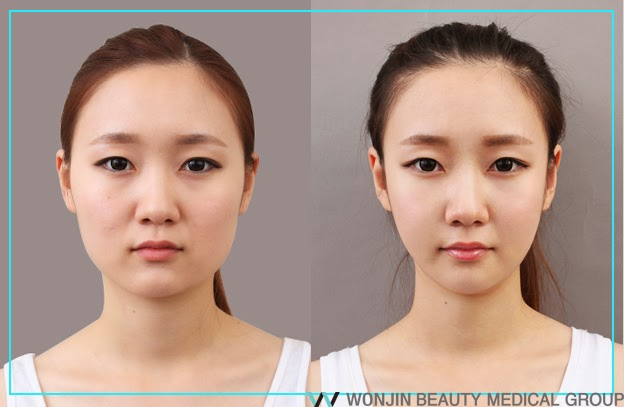 face_contouring_wonjin_plasric_surgery_before_after