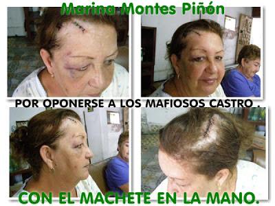 EL ARCHIVO DEL CHIVA: LOS DELATORES AL DESCUBIERTO - Página 30 MARIANA-MONTES-GOLPEADA