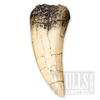 Inilah Gigi Termahal di Dunia