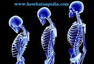 Ciri ciri osteoporosis