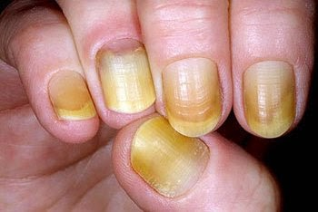 PROTECT YOUR NAILS FROM YELLOWING