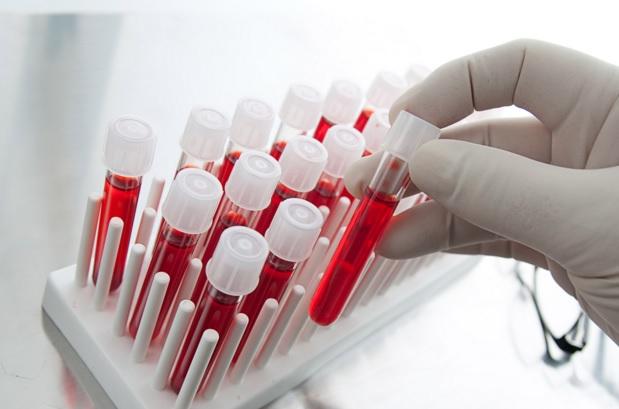 Testi i Gjakut Parashikon se kur Antibiotikët janë të Padobishme