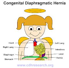 Anatomy of a CDH