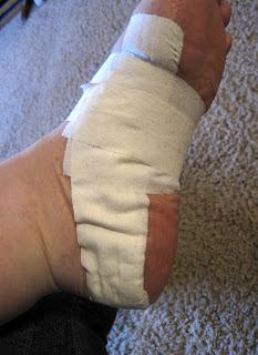foot taping for plantar fasciitis with ASTYM