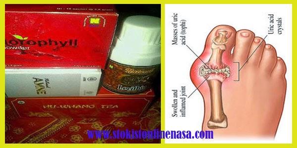 cara-mengobati-paket-asam-urat-produk-nasa-stokist-online