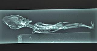 Múmia é encontrada no chile e possui 15 centímetros, estipulasse que tenha vivido por 6 anos antes de morrer.