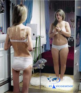 psicologia-anorexia-espejo-adolescente-