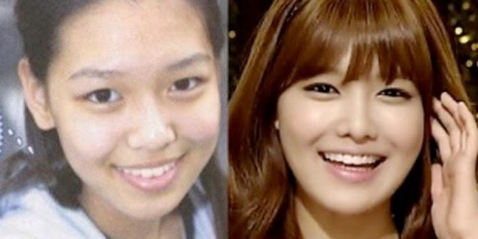 Perubahan Wajah Artis Korea