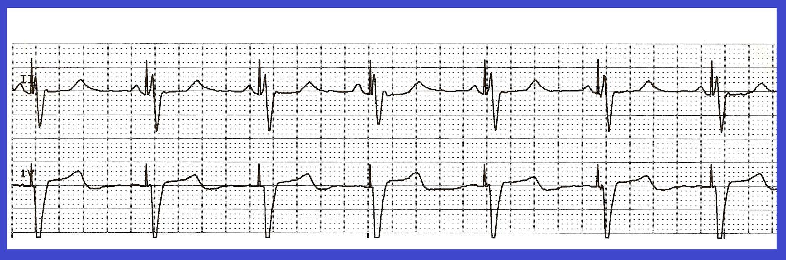 Polymorphic Ventricular Tachycardia | www.imgkid.com - The ...