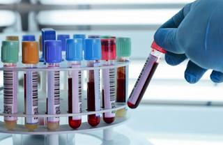 Como a Enfermagem trabalha em Exames Laboratoriais