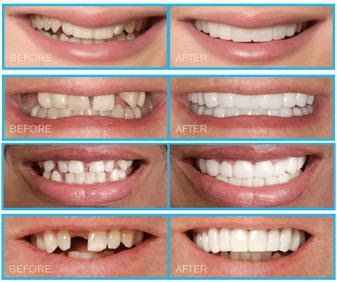 Clinica Dental Snap On Smile