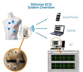 シンマー社の心電計