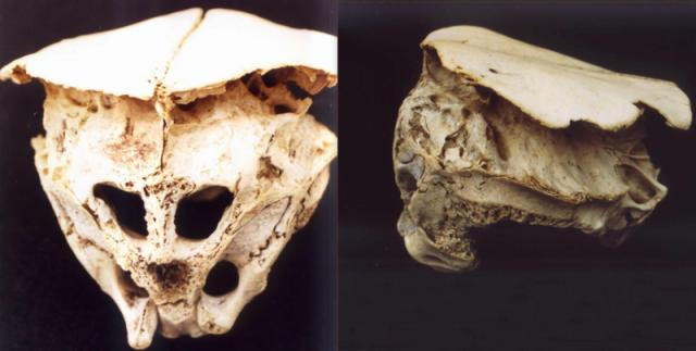 The Rhodope Skull: Was It The Mysterious Cranium Of A Real-life Alien?