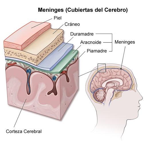 ¿Qué es la meningitis aguda?