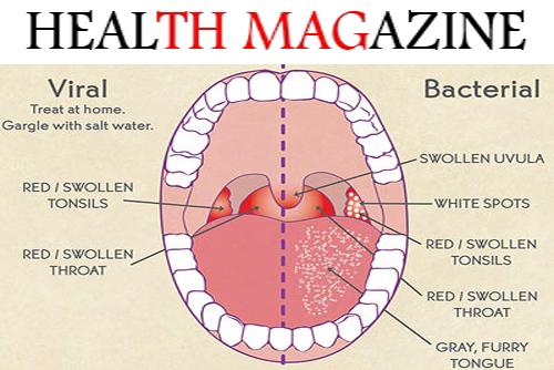 Neurontin Causing Persistant Sore Throat