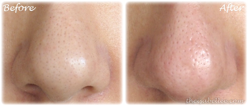 Before and after blackhead removal