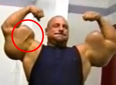 #TEAMWOBB Mainpage: Gregg Valentino before & after Steroids