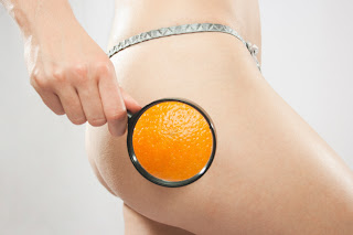 cellulite removal, get rid of cellulite, cellulite on thighs