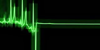 Aumento repentino de la actividad eléctrica en el cerebro