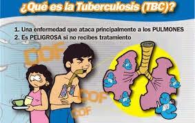 dibujo tbc:
