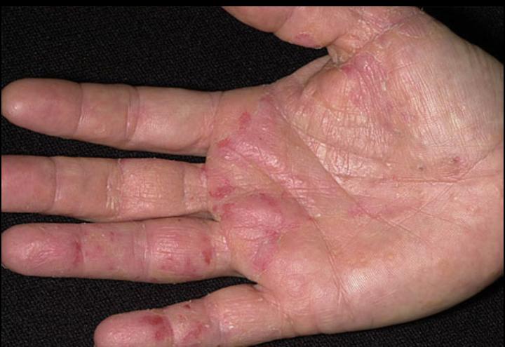 Cara Atasi Alergik Sabun