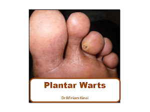 Plantar Warts Book