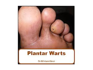 Plantar Warts Book